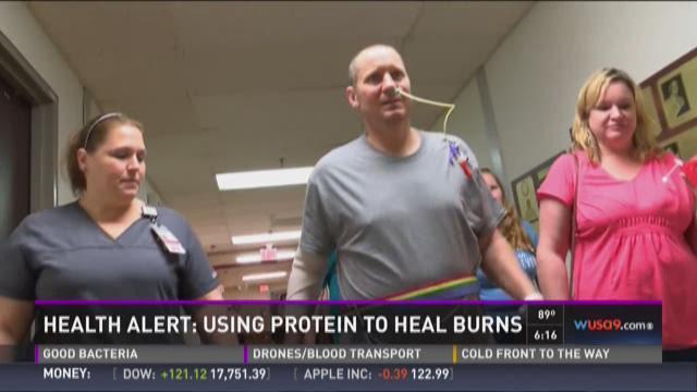 Health Alert: Using protein to heal burns
