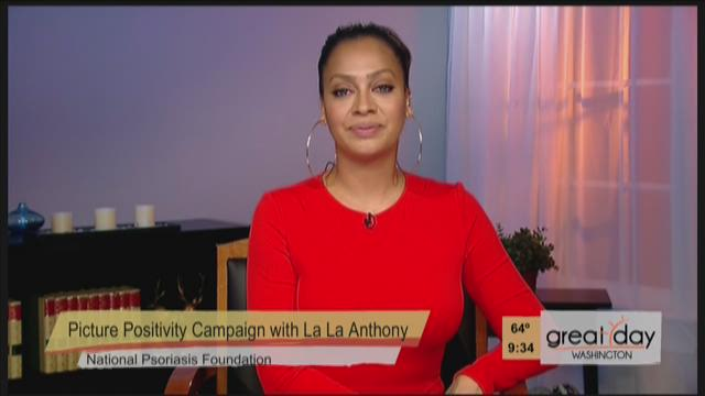 Former MTV Veejay, actress and best-selling author La La Anthony shares her journey battling the auto-immune, skin disease, psoriasis, which affects 7.5 million people.